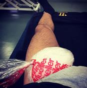 Photo: Liverpool's Suso posts injury update on Instagram